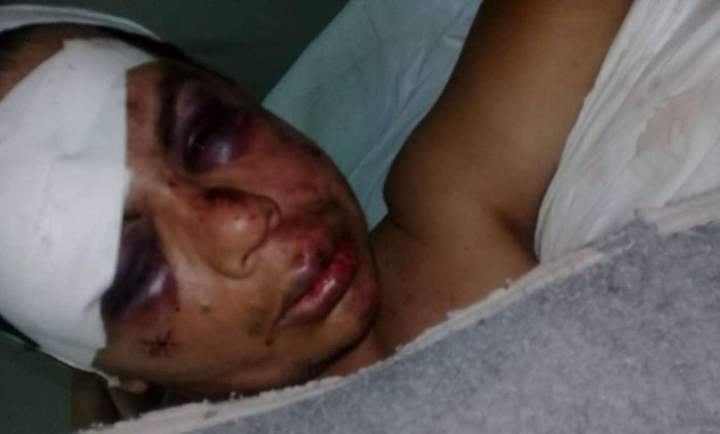 Resultado de imagen para con un ladrillo a un hombre por ser gay en Tucumán