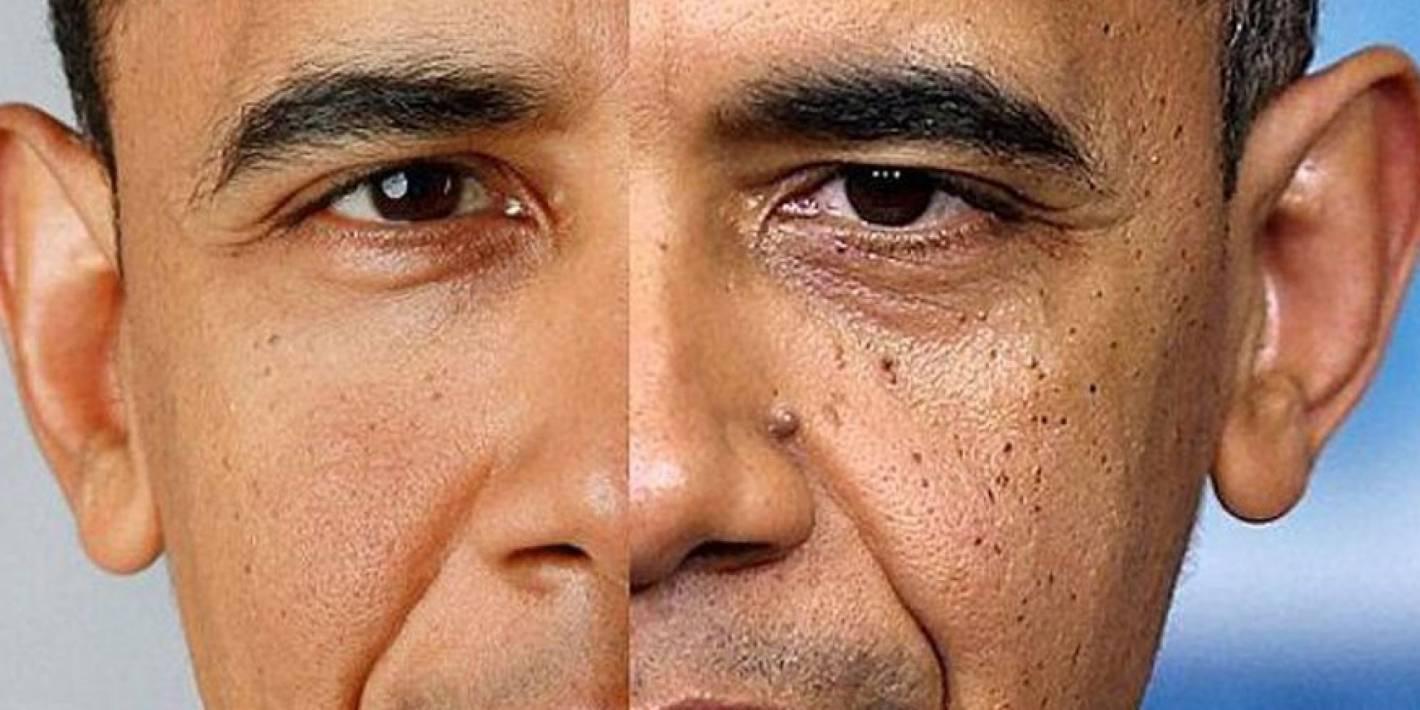 3553547a85 Fijate cuáles signos notas en la cara del hombre más poderoso del mundo.