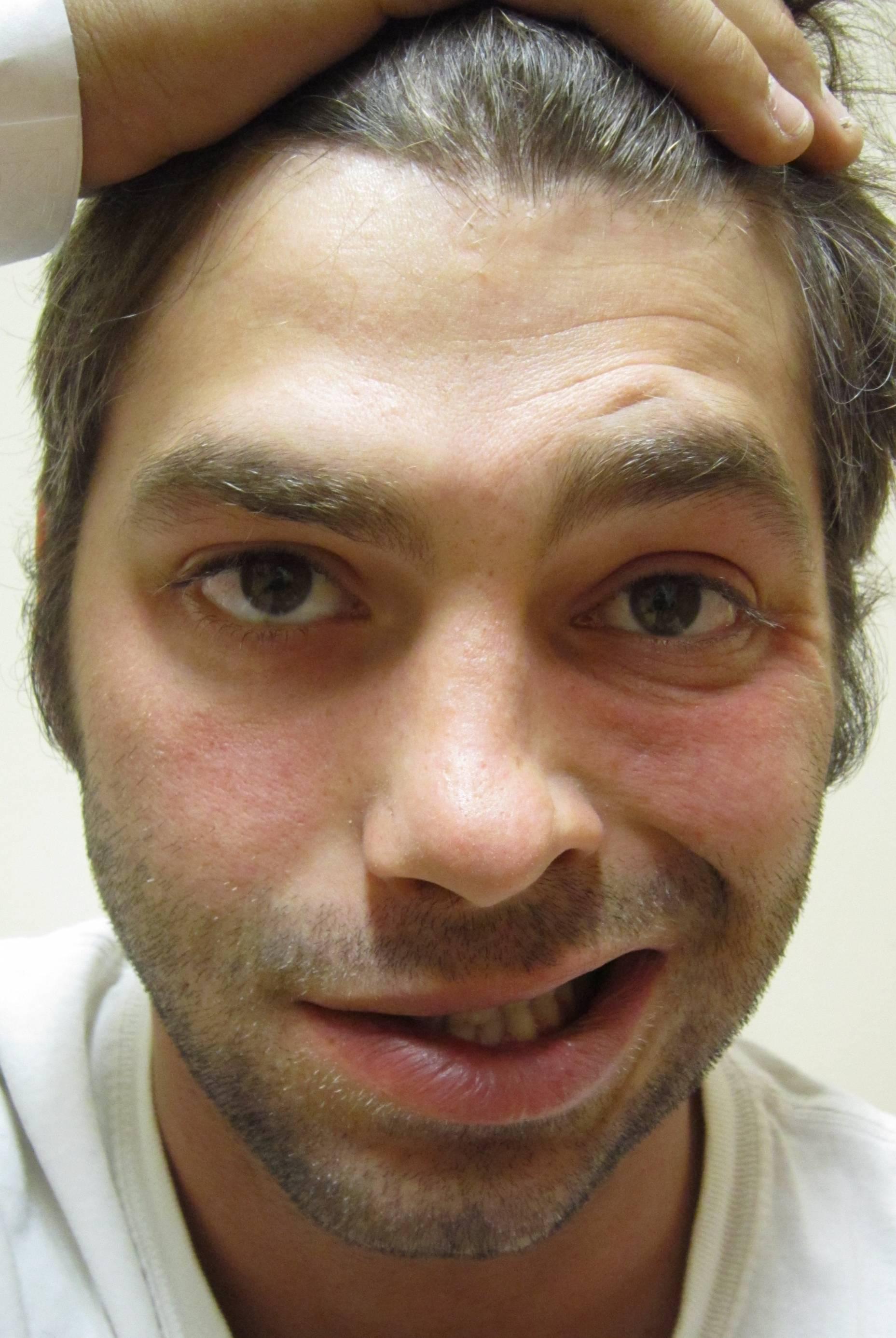 f39b73ed8d Hinchazón alrededor de los ojos y la cara también puede ser un signo de  alergias.